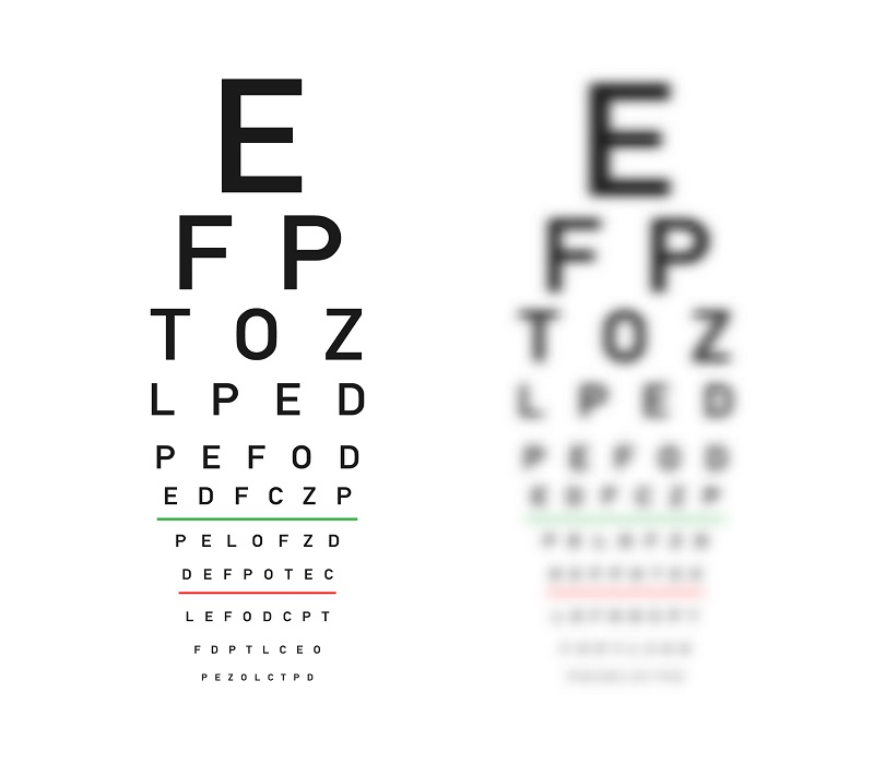 A picture of an eye exam example.